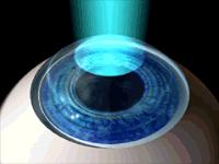myopia-laser5