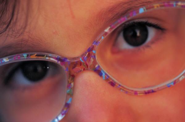 eyeschild